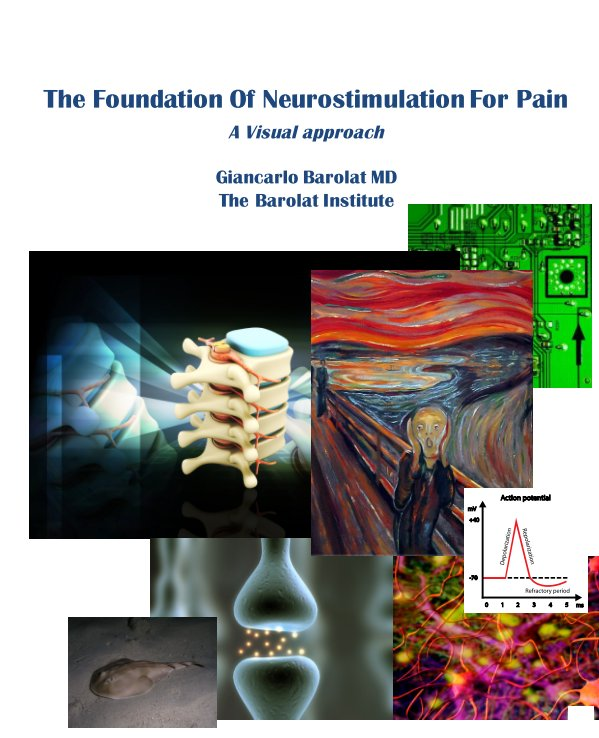 View The Foundation of Neurostimulation for Pain by Giancarlo Barolat
