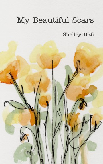 View My Beautiful Scars by Shelley Hall