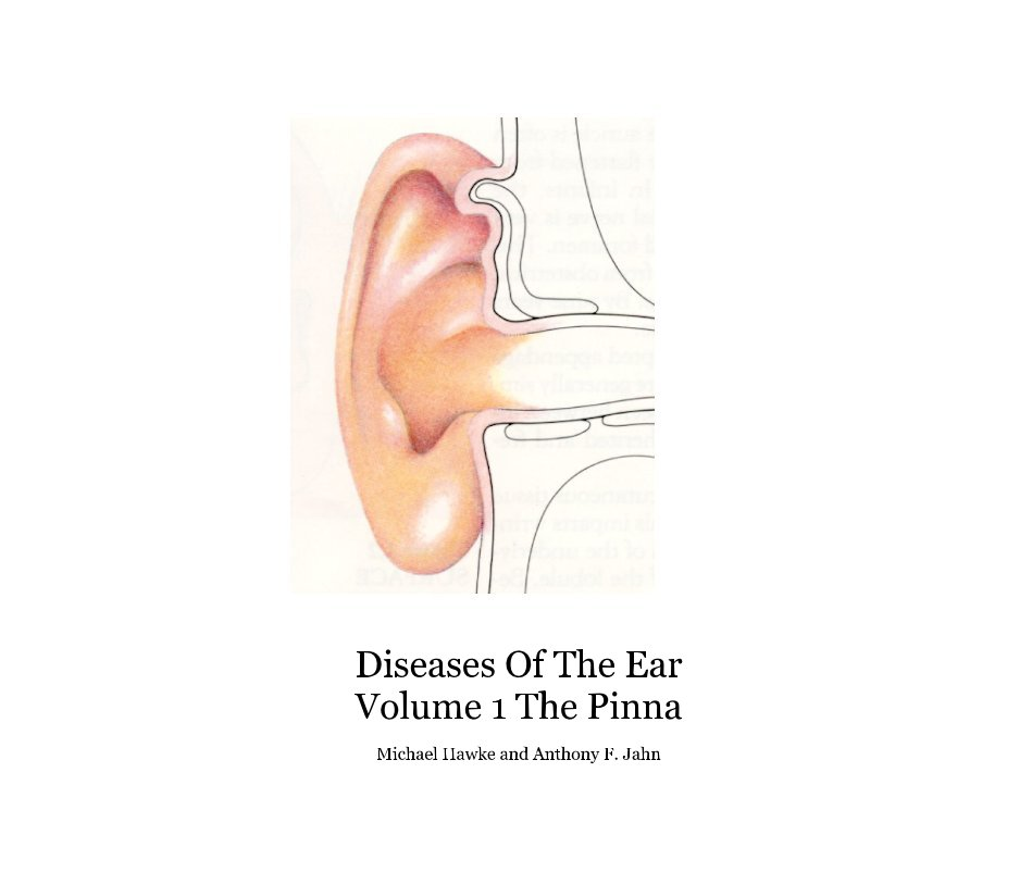 Diseases Of The Ear Volume 1 The Pinna nach Michael Hawke , Anthony Jahn anzeigen