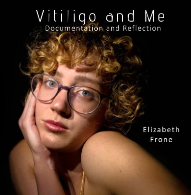 Vitiligo and Me book cover