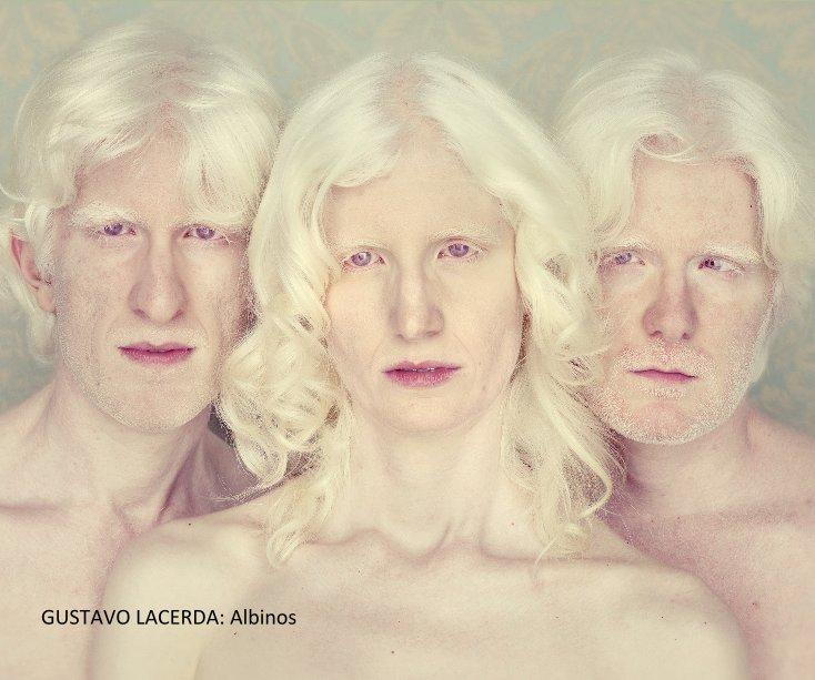 View GUSTAVO LACERDA: Albinos by CEdelman
