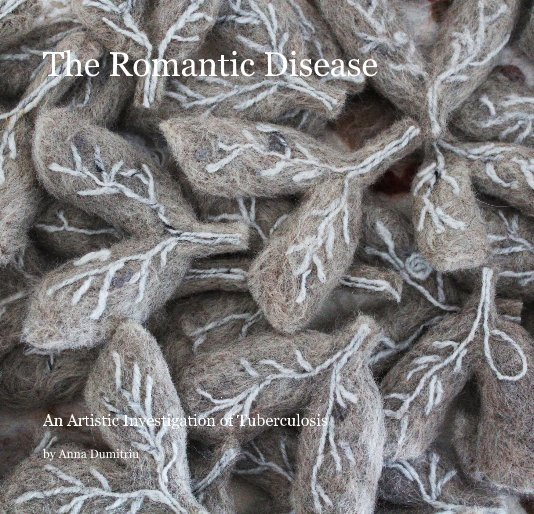 View The Romantic Disease by Anna Dumitriu